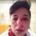 Giulia Ventura picchiata perchè lesbica