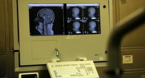 Ricerca: studio Cnr svela come avviene codifica odori nel cervello.