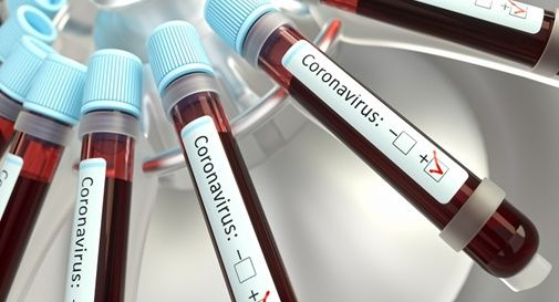 Deceduto per Coronavirus
