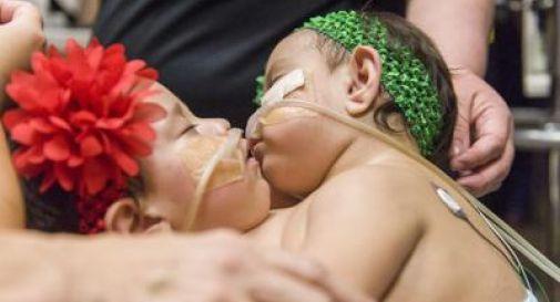Usa, gemelle siamesi separate con intervento di 26 ore