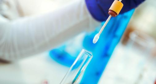Coronavirus, in Veneto il test rapido che trova il virus in 7 minuti