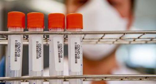 Coronavirus, in Italia altri 85 morti e oltre 500 nuovi casi
