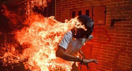 Il ragazzo in fiamme è la foto dell'anno