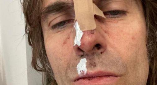 Liam Gallagher cade dall'elicottero e si ferisce
