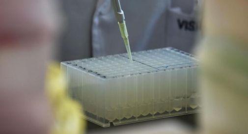 Covid, scoperta proteina responsabile di forme gravi