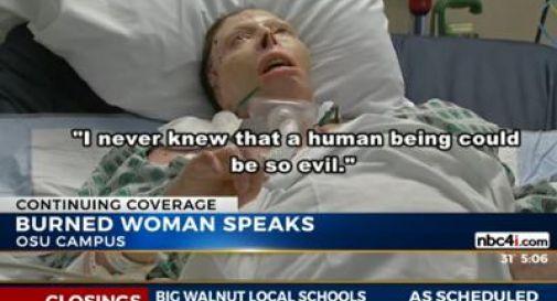 Bruciata viva dall'ex, testimonierà a processo dalla tomba