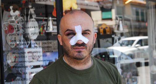 Chiede di non sporcare davanti al suo negozio: gli spaccano il naso