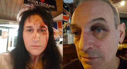 """Gestori del River Pub pestati a sangue, """"Abbiamo paura. Non siamo più al sicuro"""""""