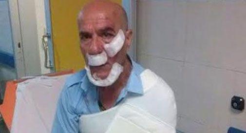 Chiede di spostare macchina, autista di bus picchiato da branco a Roma