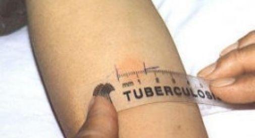 Altri due bambini affetti da tubercolosi alla scuola primaria di Motta di Livenza
